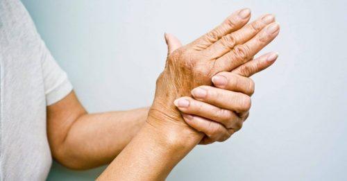 آرتریت در زنان
