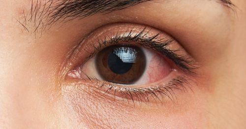 سرطان چشم