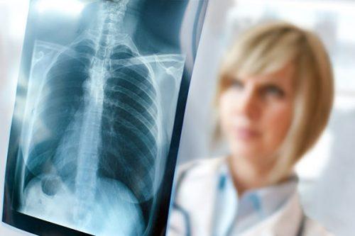 علت شکستگی استخوان