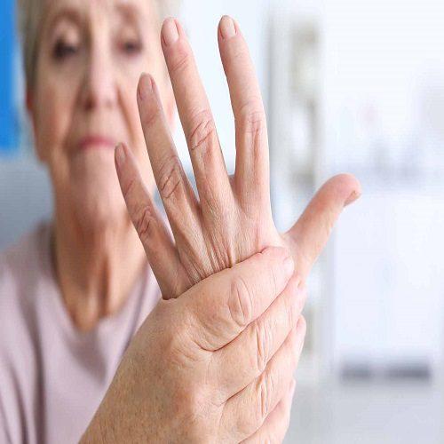 علائم آرتروز در زنان را بشناسید