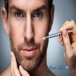 تزریق بوتاکس در مردان و هرآنچه باید بدانند