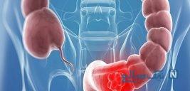 عجیب ترین علت سرطان روده در زنان