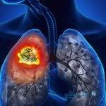 سرطان ریه در زنان با این ویژگی بیشتر است