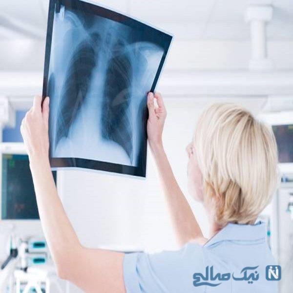 عوارض رادیولوژی برای زنان