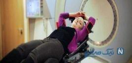 عوارض رادیولوژی برای زنان که باید بدانند