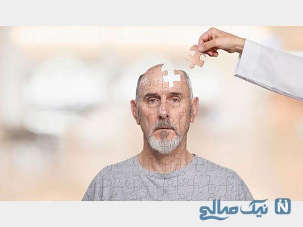 آلزایمر در مردان