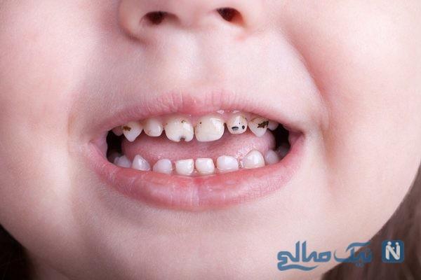 شکل دندان کودکان