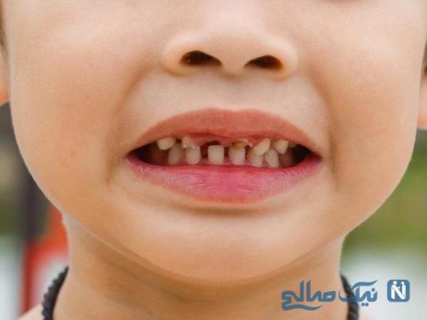 شکل دندان کودکان تحت تاثیر چه عواملی نامناسب می شود