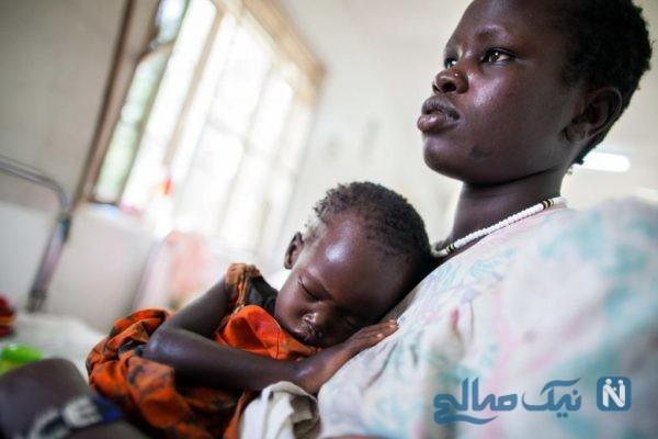 رفع سوء تغذیه کودکان