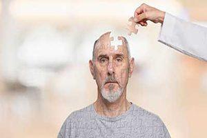 اضطراب اولین و مهم ترین نشانه بروز بیماری آلزایمر