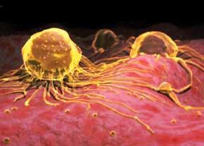 طرح پیشگیری از سرطان سینه