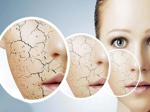 روشهای فوری برای از بین بردن ترکهای پوستی