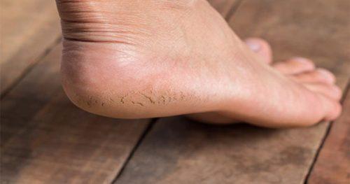 از بین بردن ترک های پوستی
