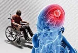 آیا ورزشهای تعادلی برای بیماران MS مفید است؟