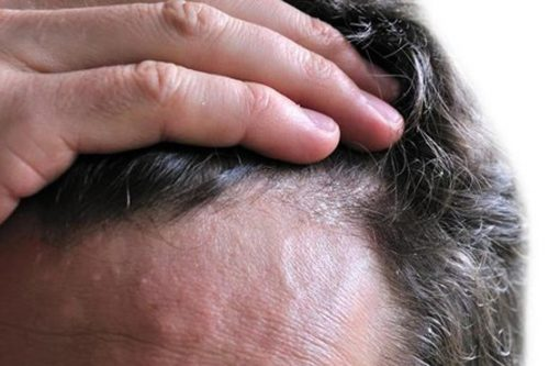 درمان ریزش مو با دمنوش گیاهی