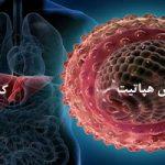مهمترین علایم و نشانههای «سرطان کبد» را بشناسید