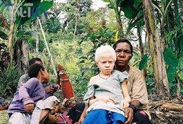 قاچاق وحشتناک در افریقای شرقی + عکس