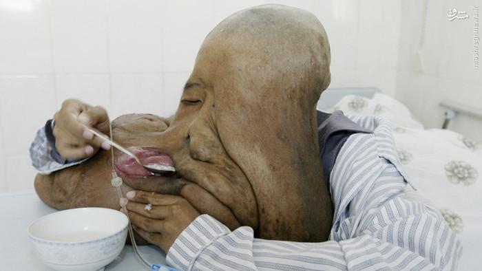 اگر دلش را دارید نگاه کنید، مرد فیل چهره چینی + تصاویر