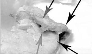 مسمومیت بر اثر مصرف کالباس مارمولکدار! +عکس