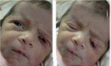 تیغ جراحی پلک نوزاد را برید +عکس