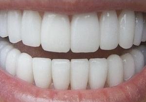 جرمگیری دندانها و داشتن دندانهایی تمیز و سالم با مواد غذایی طبیعی