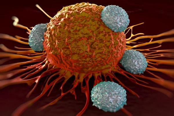 رشد سرطان در بدن شما درحال پیشروی است اگر این نشانه ها را دارید!!