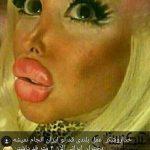 نظر الهام عرب درباره جراحی زیبایی دختران