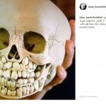 تصویر جمجمه در اینستاگرام بنفشه خواه