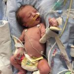 جراحی قلب جنین در رحم مادر برای اولین بار!