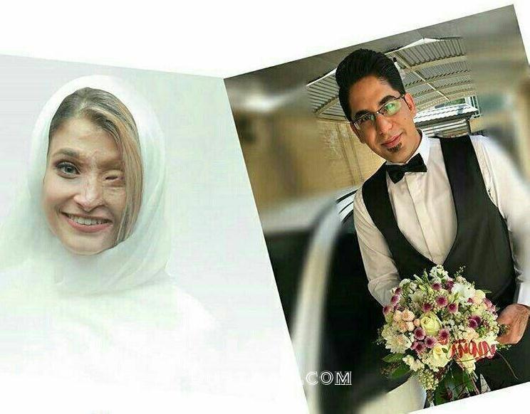ازدواج قربانی اسید پاشی اصفهان