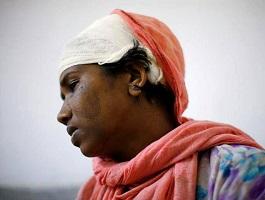 بریدن گوش این زن مسلمان به خاطر گوشواره اش