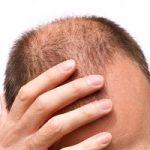 روشی ساده برای جلوگیری از ریزش مو و پرپشت کردن موهایتان