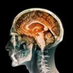 تعیین IQ افراد بدون آزمون
