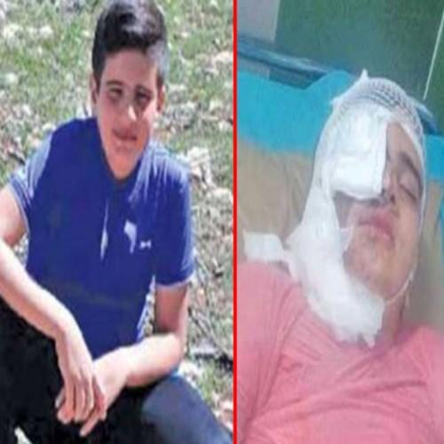 دانش آموز قربانی اسید پاشی