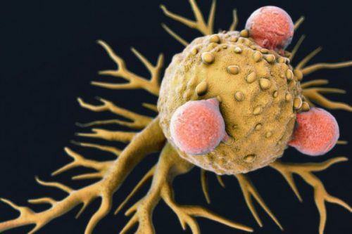 واکسن ضد سرطان