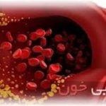با این علائم ساده متوجه می شود چربی خون شما بالاست