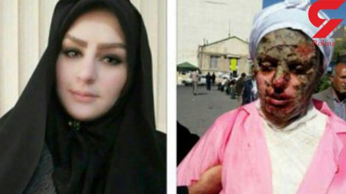 اسیدپاشی به دختر تبریزی