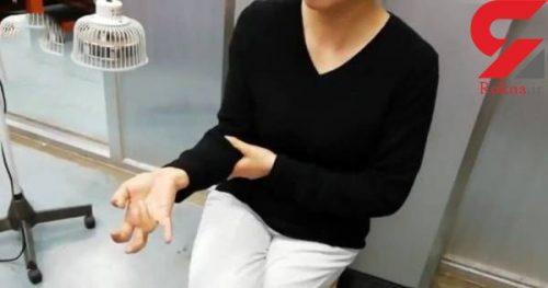 فلج شدن انگشتان دست