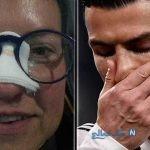 هدیه رونالدو به هواداری که به خاطر شوت او بینی اش شکست!