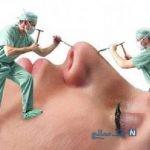بازار داغ جراحی های زیبایی در آستانه عید