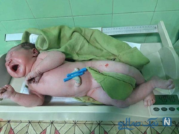 نوزاد پنج کیلویی