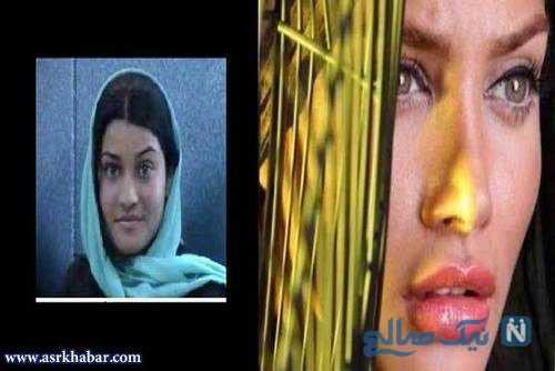 تفاوت چهره بازیگران زن ایرانی، قبل و بعد از عمل زیبایی+تصاویر
