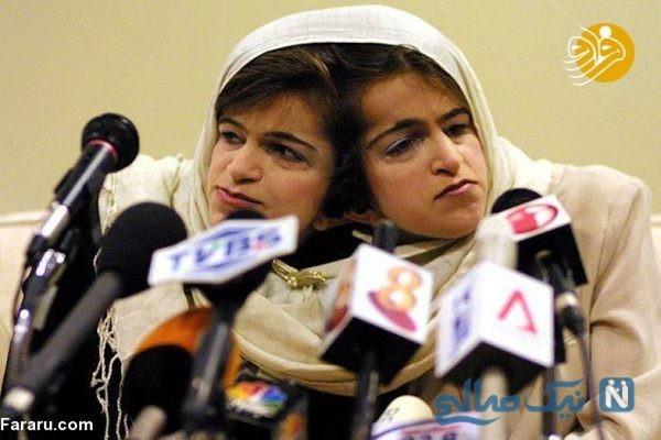 دوقلوهای به هم چسبیده همانند لاله و لادن در سورینام