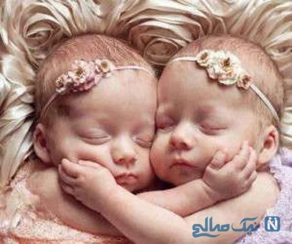 جداسازی دو خواهر دوقلوی به هم چسبیده بعد از ۵۰ ساعت جراحی
