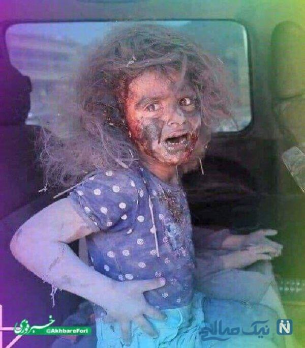 عکس دردناک کودک