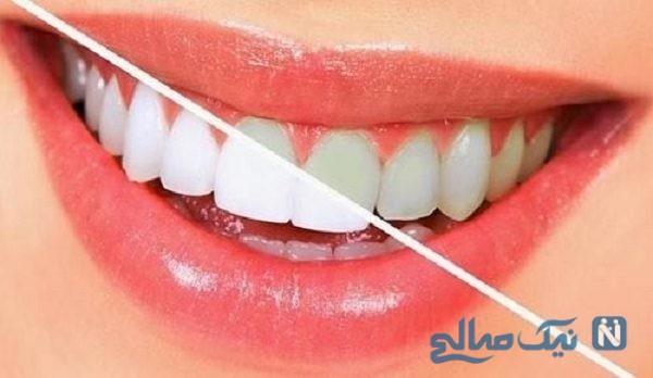 موادغذایی ضد پلاک دندان و سفیدکننده فوق العاده دندان