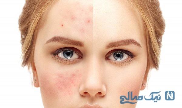 رفع جای جوش و راه های درمان آن از زبان یک متخصص پوست
