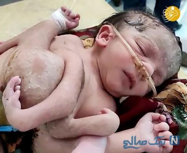 تولد نوزاد عجیب