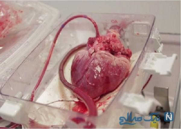انتقال قلب بیمار ۱۶ ساله از رشت به تهران