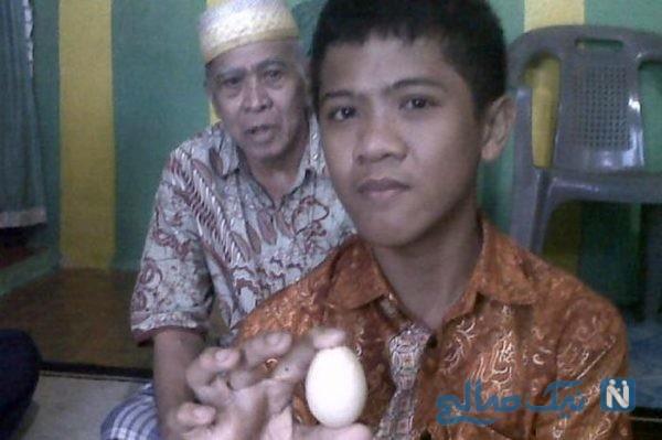 تخم گذاشتن پسر ۱۴ ساله از ۱۱ سالگی | بیست تخم در سه سال